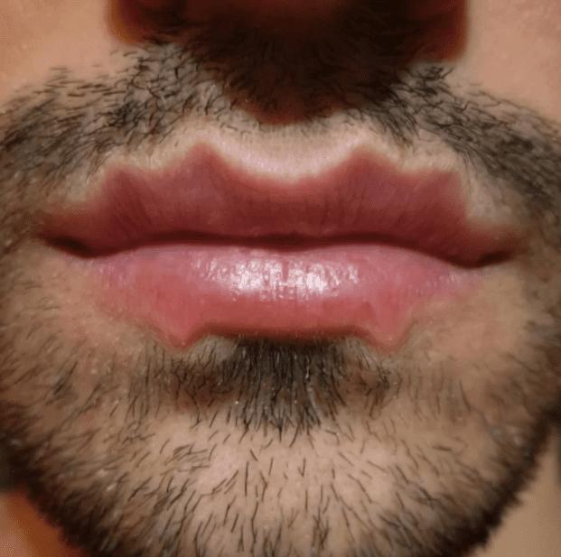 губы дьявола, губы осьминоги