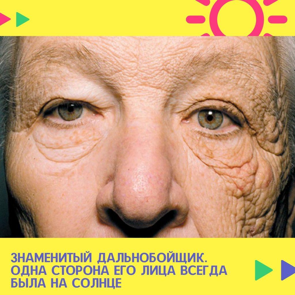 фотостарение, солнцезащитный крем