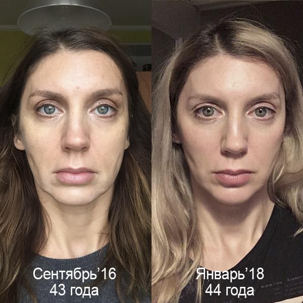 сахар кожа старение